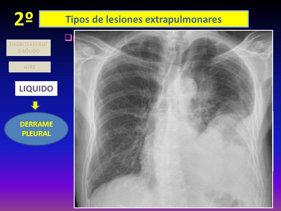 Tipos de lesiones extrapulmonares AIRE LIQUIDO DERRAME PLEURAL ENGROSAMIENT O SÓLIDO ENCAPSULADO: LOCULACIÓN PERIFÉRICA: (entre amabas pleuras perifér