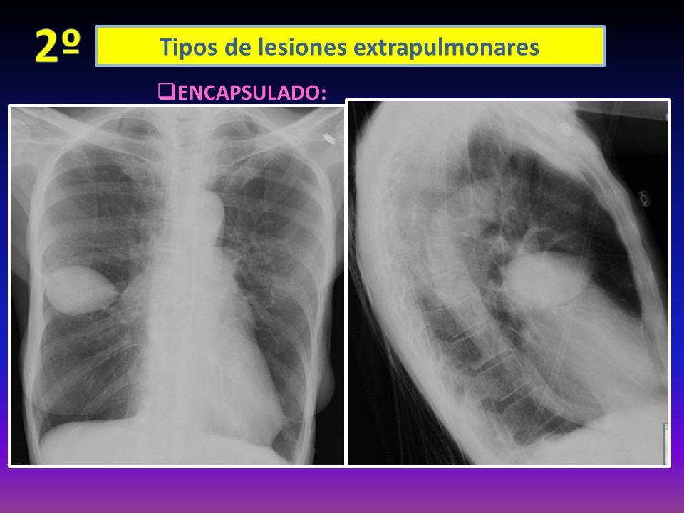 Tipos de lesiones extrapulmonares AIRE LIQUIDO DERRAME PLEURAL ENCAPSULADO: LOCULACIÓN PERIFÉRICA: (entre amabas pleuras periféricas) LOCULACIÓN CISUR