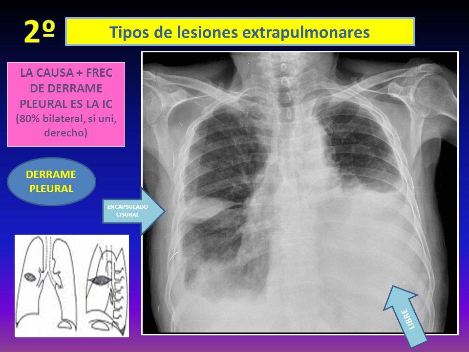 Tipos de lesiones extrapulmonares LA CAUSA + FREC DE DERRAME PLEURAL ES LA IC (80% bilateral, si uni, derecho) DERRAME PLEURAL ENCAPSULADO CISURAL LIB