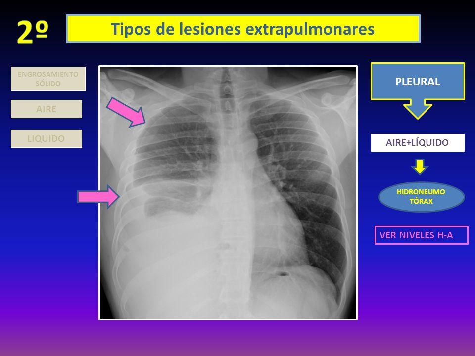 Tipos de lesiones extrapulmonares PLEURAL LIQUIDO AIRE+LÍQUIDO HIDRONEUMO TÓRAX ENGROSAMIENTO SÓLIDO AIRE VER NIVELES H-A