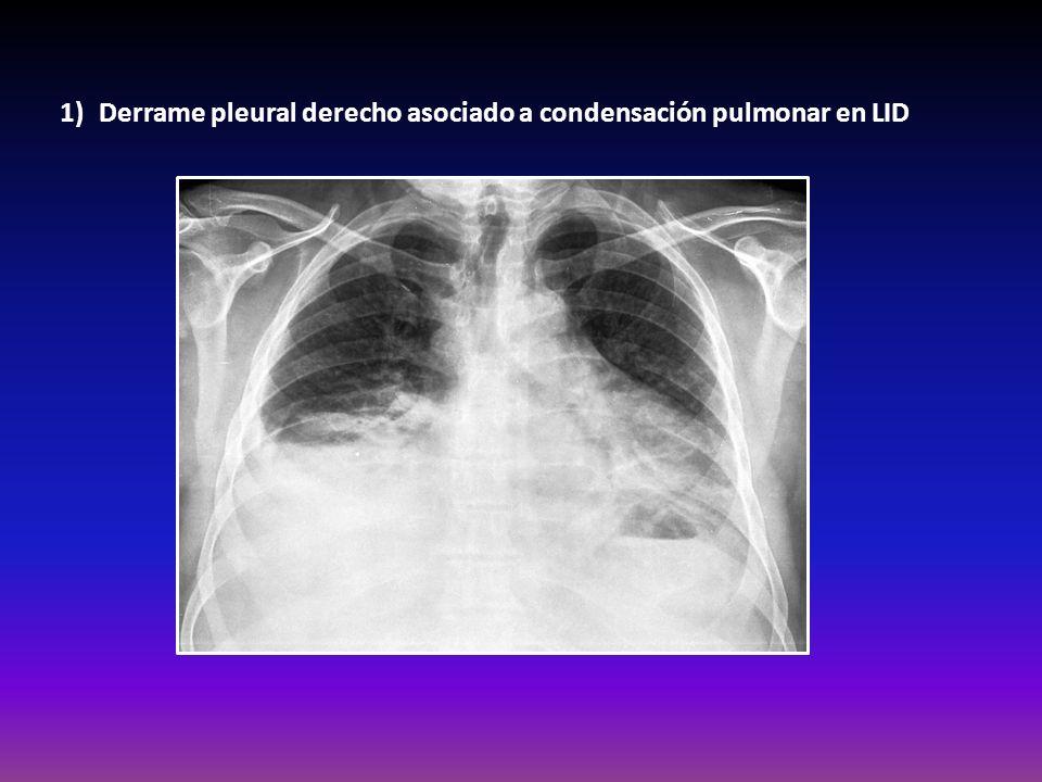 1)Derrame pleural derecho asociado a condensación pulmonar en LID