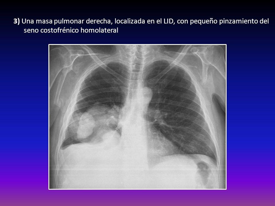 3) Una masa pulmonar derecha, localizada en el LID, con pequeño pinzamiento del seno costofrénico homolateral