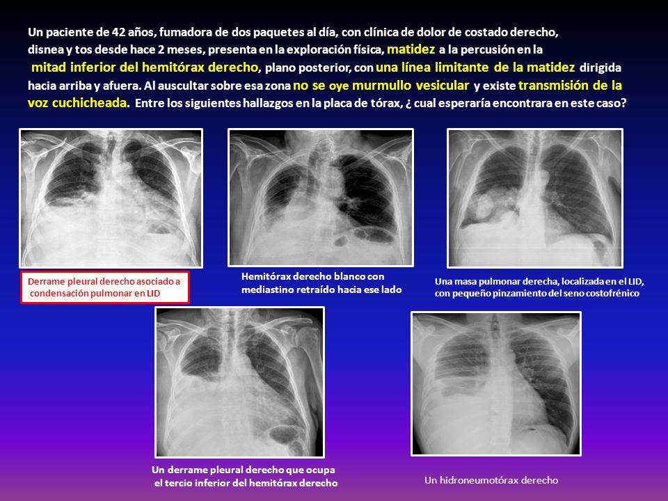 Un paciente de 42 años, fumadora de dos paquetes al día, con clínica de dolor de costado derecho, disnea y tos desde hace 2 meses, presenta en la expl