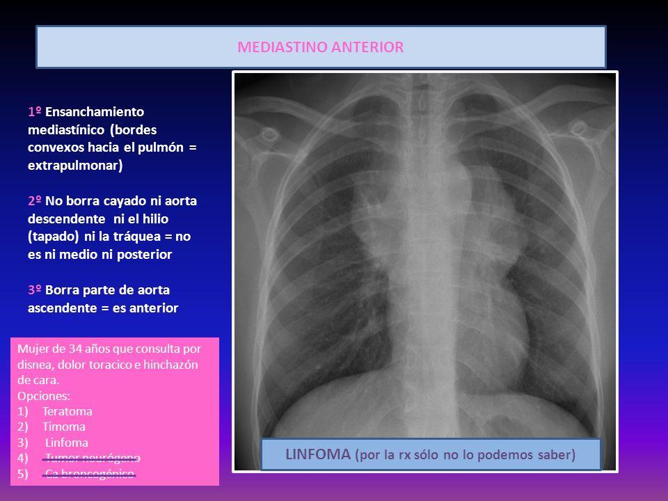 MEDIASTINO ANTERIOR 1º Ensanchamiento mediastínico (bordes convexos hacia el pulmón = extrapulmonar) 2º No borra cayado ni aorta descendente ni el hil
