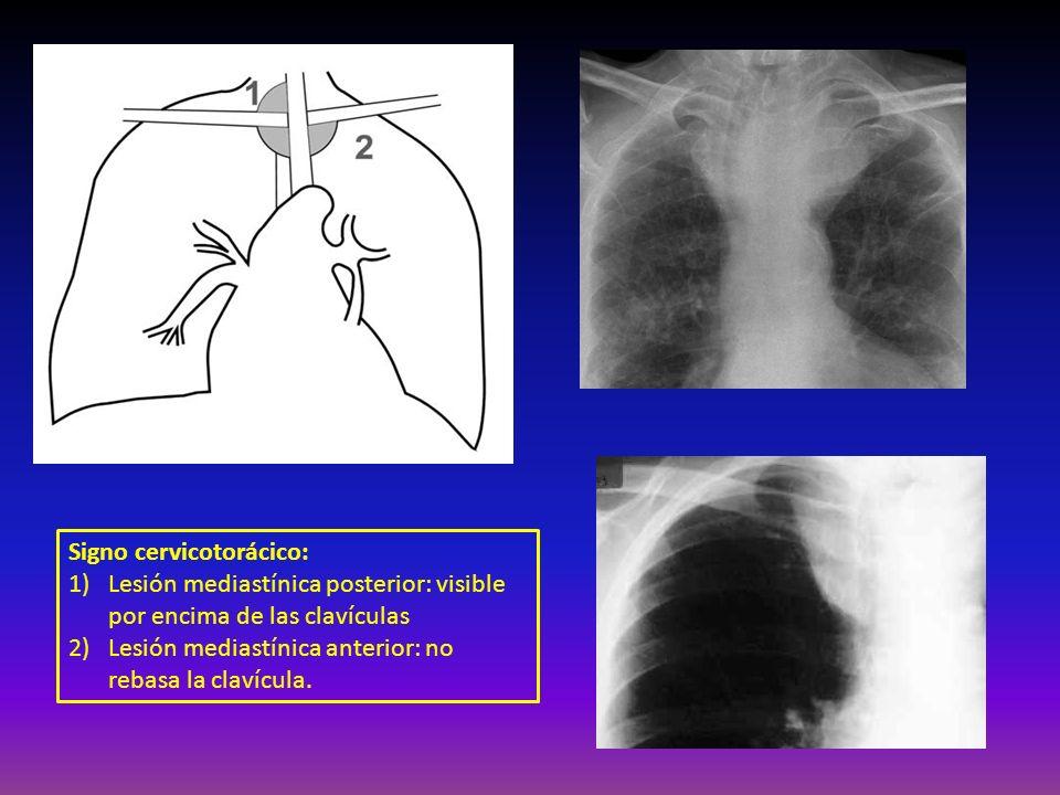 Signo cervicotorácico: 1)Lesión mediastínica posterior: visible por encima de las clavículas 2) Lesión mediastínica anterior: no rebasa la clavícula.