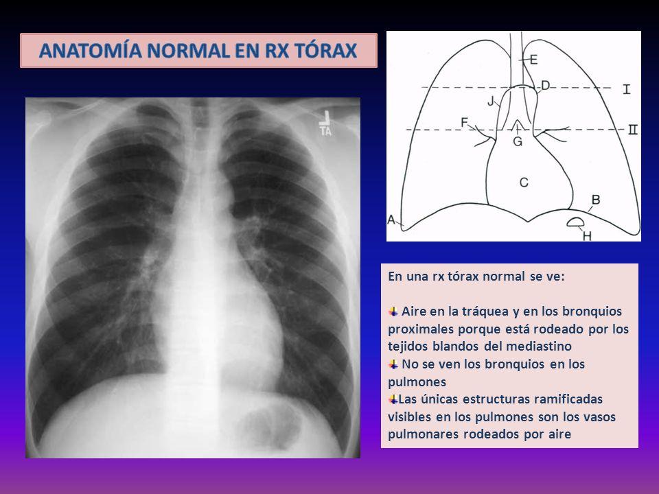 En una rx tórax normal se ve: Aire en la tráquea y en los bronquios proximales porque está rodeado por los tejidos blandos del mediastino No se ven lo