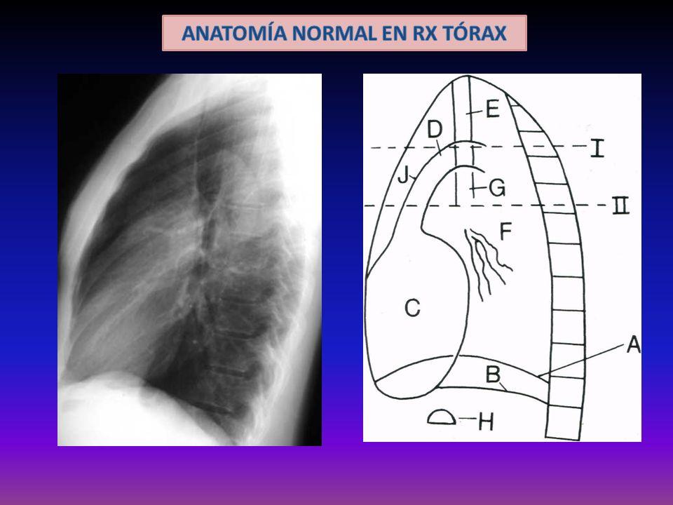 Tipos de lesiones extrapulmonares ENGROSAMIENTO SÓLIDO AIRE NEUMOTÓRAX NO HAY TRAMA PULMONAR HIPERCLARIDAD Ojo con escapula !!!