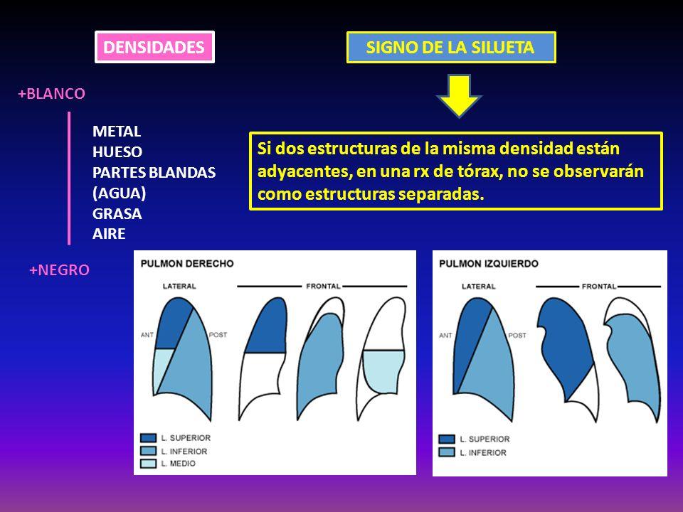 DENSIDADES METAL HUESO PARTES BLANDAS (AGUA) GRASA AIRE +BLANCO +NEGRO SIGNO DE LA SILUETA Si dos estructuras de la misma densidad están adyacentes, e