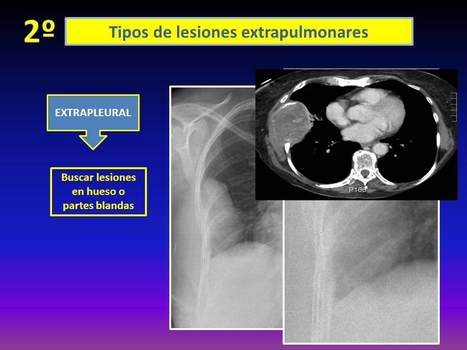 Tipos de lesiones extrapulmonares AIRE LIQUIDO DERRAME PLEURAL ENGROSAMIENT O SÓLIDO ENCAPSULADO: LOCULACIÓN PERIFÉRICA: (entre amabas pleuras periféricas) LOCULACIÓN CISURAL: TUMOR FANTASMA O EVANESCENTE (típico de IC y desaparece con diuréticos) EMPIEMA: nivel H-A por fístulas broncopulmonares