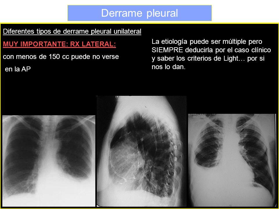 Diferentes tipos de derrame pleural unilateral MUY IMPORTANTE: RX LATERAL: con menos de 150 cc puede no verse en la AP La etiología puede ser múltiple