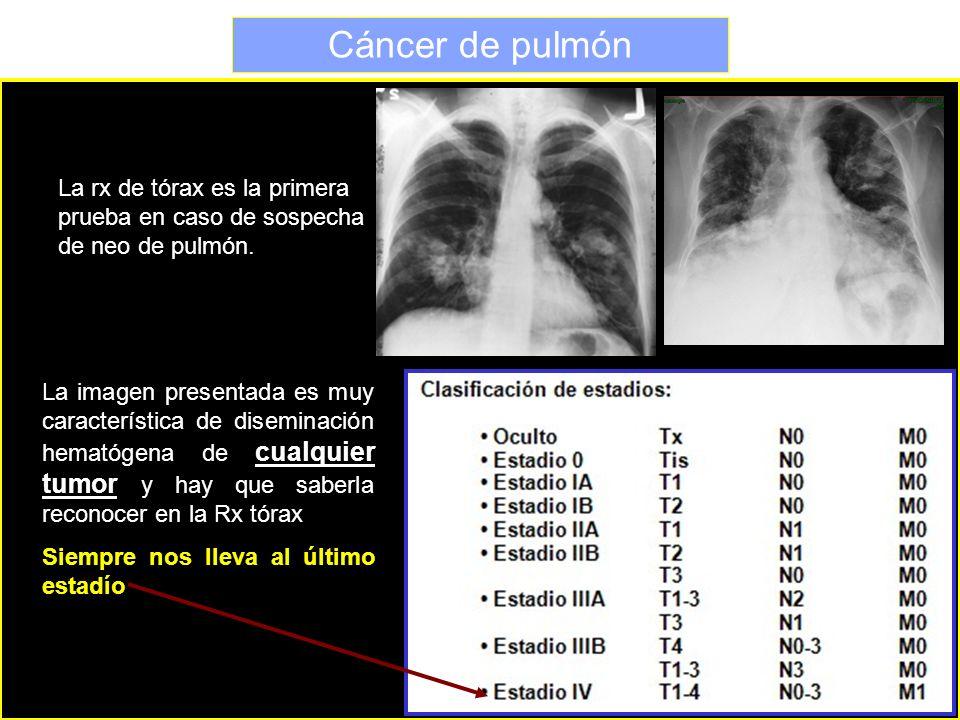 Cáncer de pulmón La imagen presentada es muy característica de diseminación hematógena de cualquier tumor y hay que saberla reconocer en la Rx tórax S