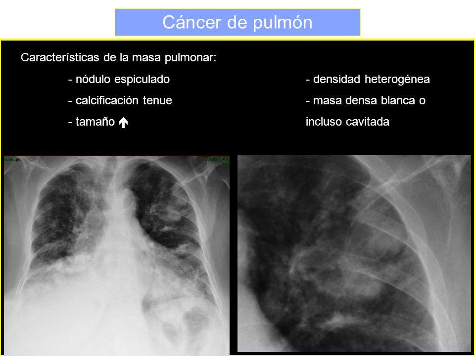 Cáncer de pulmón Características de la masa pulmonar: - nódulo espiculado- densidad heterogénea - calcificación tenue- masa densa blanca o - tamaño in