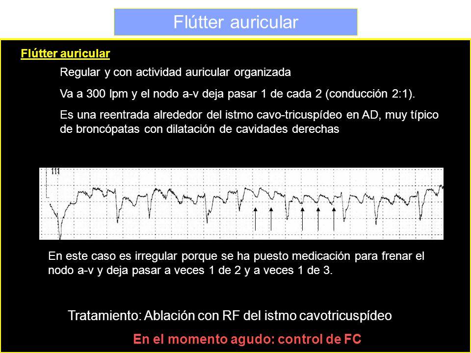 Flútter auricular Regular y con actividad auricular organizada Va a 300 lpm y el nodo a-v deja pasar 1 de cada 2 (conducción 2:1). Es una reentrada al