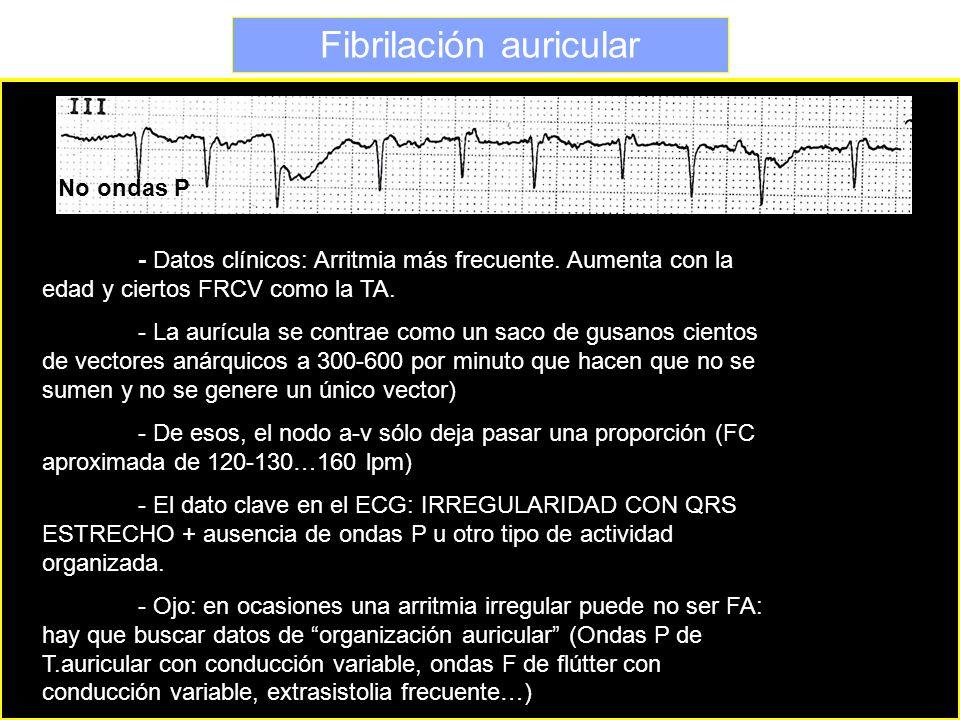 Fibrilación auricular No ondas P - Datos clínicos: Arritmia más frecuente. Aumenta con la edad y ciertos FRCV como la TA. - La aurícula se contrae com