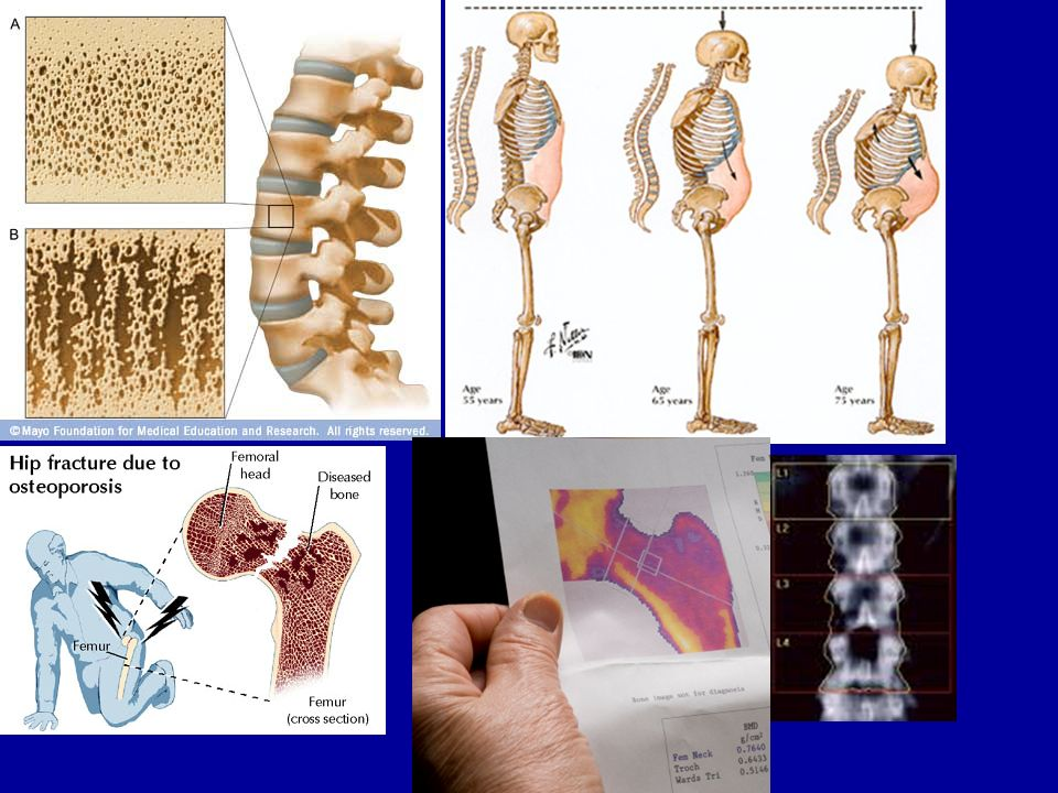 ENFERMEDADES ÓSEAS. OTROS CONCEPTOS -RAQUITISMO GRAVE CON HIPERPTH E HIPOCALCEMIA -RVDD TIPO 1 -RAQUITISMO CON XANTOMATOSIS -MUTACIONES GEN 25 HIDROXI
