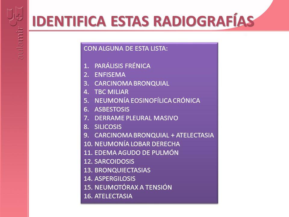 IDENTIFICA ESTAS RADIOGRAFÍAS CON ALGUNA DE ESTA LISTA: 1.PARÁLISIS FRÉNICA 2.ENFISEMA 3.CARCINOMA BRONQUIAL 4.TBC MILIAR 5.NEUMONÍA EOSINOFÍLICA CRÓN