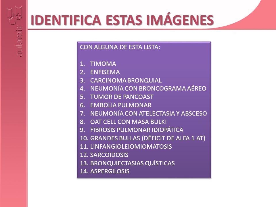 IDENTIFICA ESTAS IMÁGENES CON ALGUNA DE ESTA LISTA: 1.TIMOMA 2.ENFISEMA 3.CARCINOMA BRONQUIAL 4.NEUMONÍA CON BRONCOGRAMA AÉREO 5.TUMOR DE PANCOAST 6.E