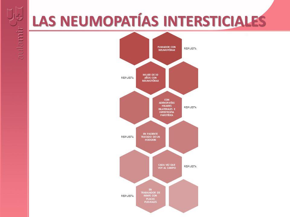 LAS NEUMOPATÍAS INTERSTICIALES FUMADOR CON NEUMOTÓRAX RESPUESTA MUJER DE 30 AÑOS CON NEUMOTÓRAX RESPUESTA CON ADENOPATÍAS HILIARES BILATERALES E HIPER