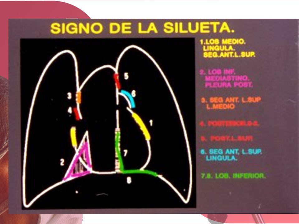 PREGUNTAS CORTAS Y RÁPIDAS TRATAMIENTO DEL CARCINOMA OAT CELL LIMITADO RESPUESTA DERRAME PARANEUMÓNICO CON pH DE 7,10 T SOSPECHA DE EMPIEMA.