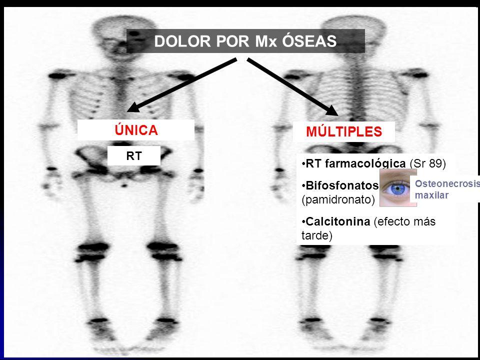 DOLOR POR Mx ÓSEAS ÚNICA RT MÚLTIPLES RT farmacológica (Sr 89) Bifosfonatos (pamidronato) Calcitonina (efecto más tarde) Osteonecrosis maxilar