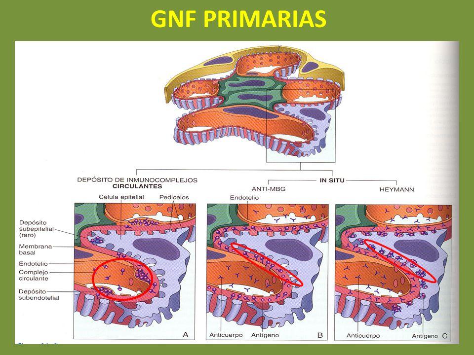 GNF PRIMARIAS