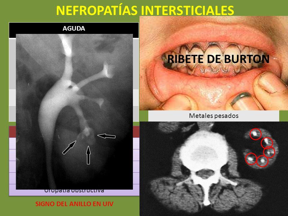 NEFROPATÍAS INTERSTICIALES AGUDA FÁRMACOS: ab, diuréticos… Sx nefrítico con exantema cutáneo + eosinofilia + eosinofiluria Retirada del fármaco Pielon