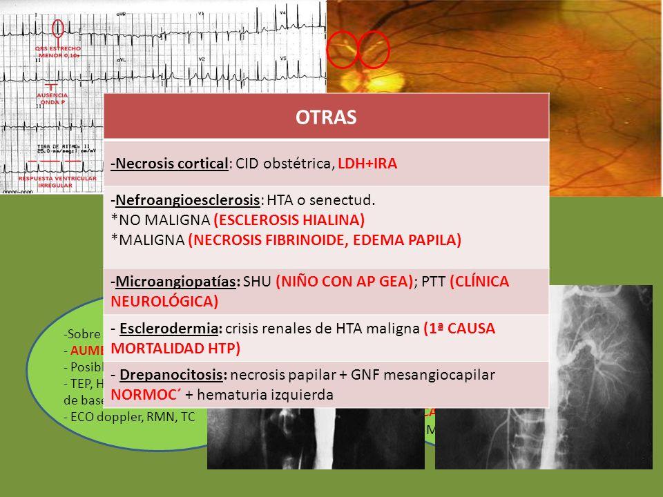 NEFROPATÍAS VASCULARES TROMBOEMBOLISMO RENAL - Embolia cardíaca (FA) -NO IRA si monorreno - ARTERIOGRAFÍA RENAL - TROMBECTOMÍA (fibrinolisis, nefrecto