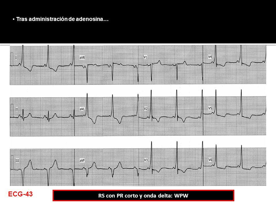 Tras administración de adenosina… RS con PR corto y onda delta: WPW ECG-43