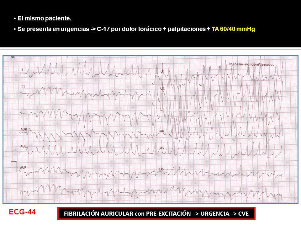 El mismo paciente. Se presenta en urgencias -> C-17 por dolor torácico + palpitaciones + TA 60/40 mmHg FIBRILACIÓN AURICULAR con PRE-EXCITACIÓN -> URG
