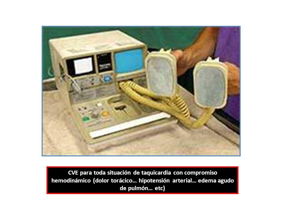 CVE para toda situación de taquicardia con compromiso hemodinámico (dolor torácico… hipotensión arterial… edema agudo de pulmón… etc)