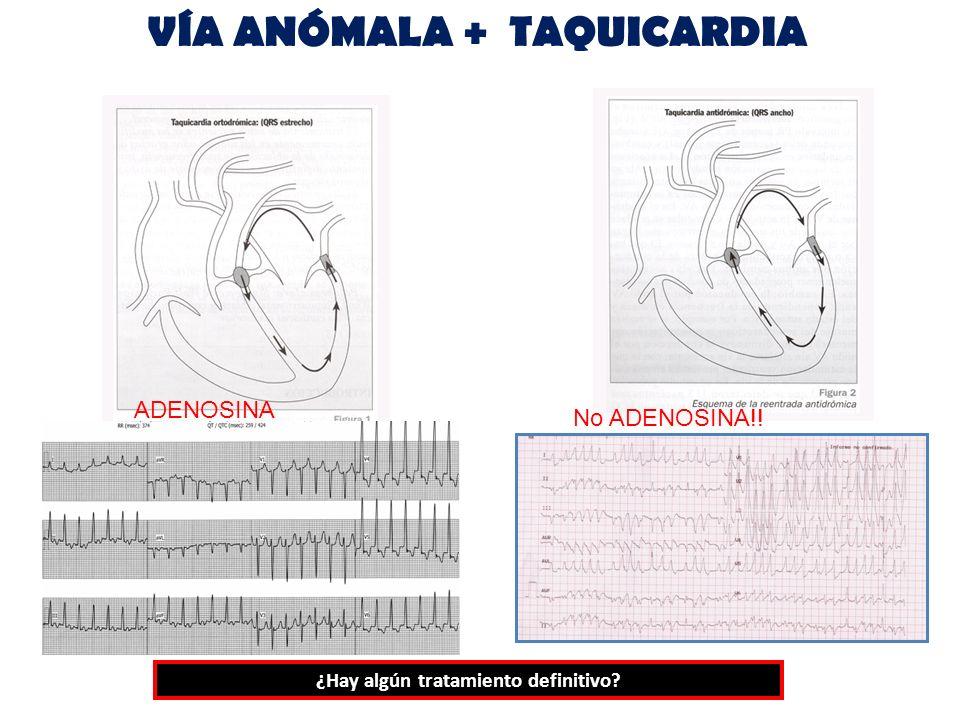 VÍA ANÓMALA + TAQUICARDIA ADENOSINA No ADENOSINA!! ¿Hay algún tratamiento definitivo?