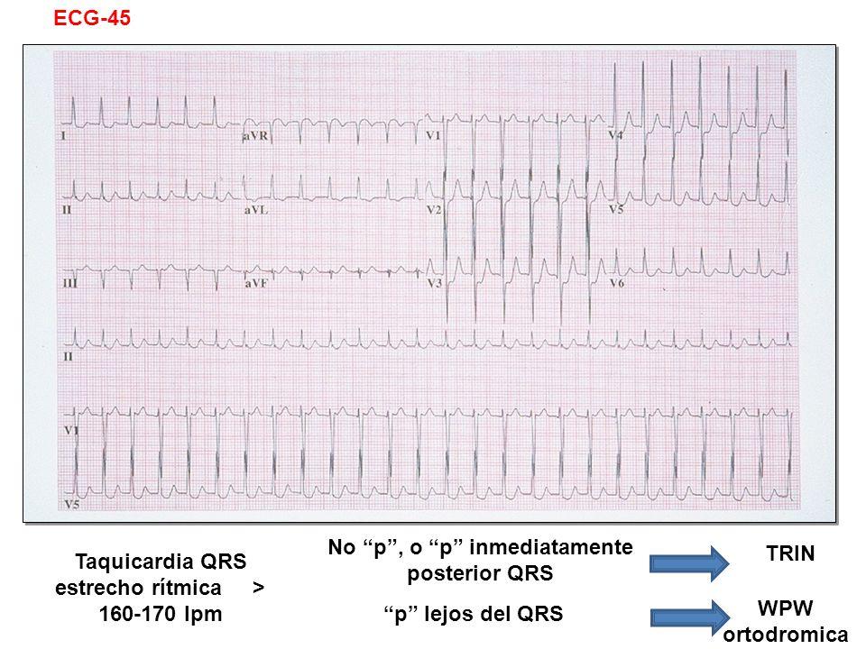 Taquicardia QRS estrecho rítmica > 160-170 lpm No p, o p inmediatamente posterior QRS p lejos del QRS TRIN WPW ortodromica ECG-45