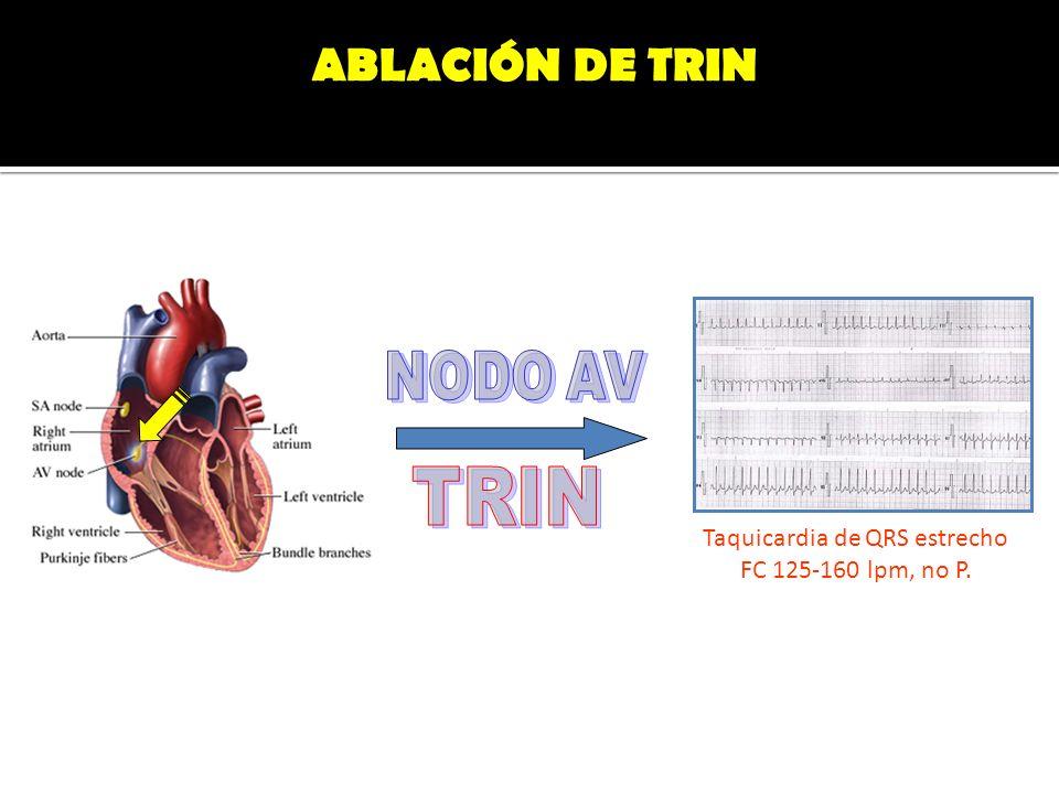 Taquicardia de QRS estrecho FC 125-160 lpm, no P. ABLACIÓN DE TRIN