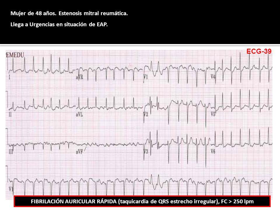 Mujer de 48 años. Estenosis mitral reumática. Llega a Urgencias en situación de EAP. FIBRILACIÓN AURICULAR RÁPIDA (taquicardia de QRS estrecho irregul