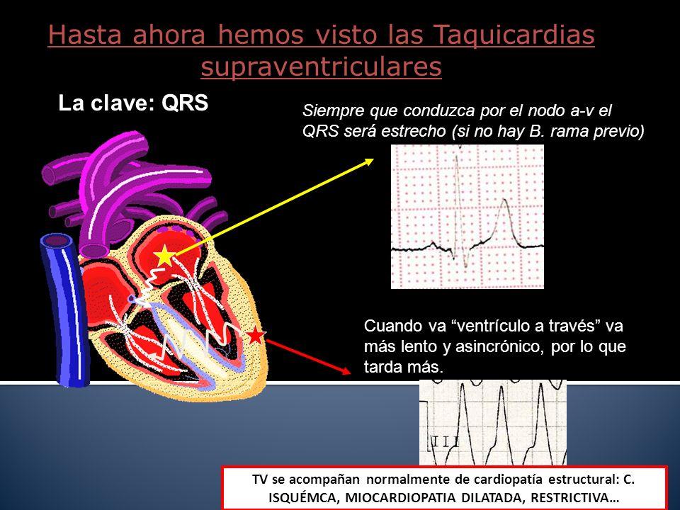 Hasta ahora hemos visto las Taquicardias supraventriculares La clave: QRS Siempre que conduzca por el nodo a-v el QRS será estrecho (si no hay B. rama