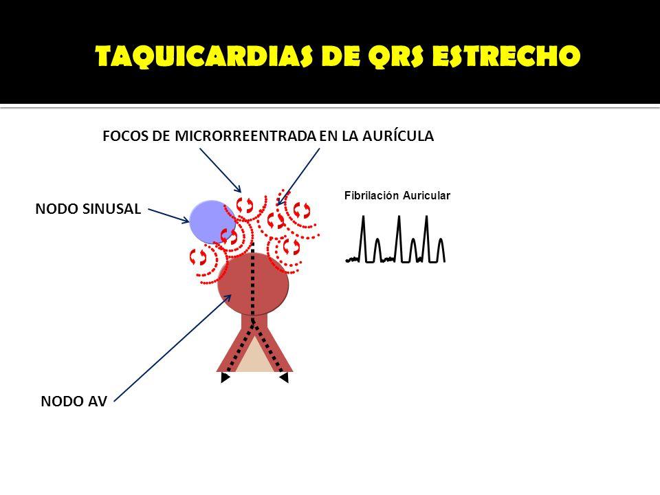 TAQUICARDIAS DE QRS ESTRECHO Fibrilación Auricular NODO AV NODO SINUSAL FOCOS DE MICRORREENTRADA EN LA AURÍCULA