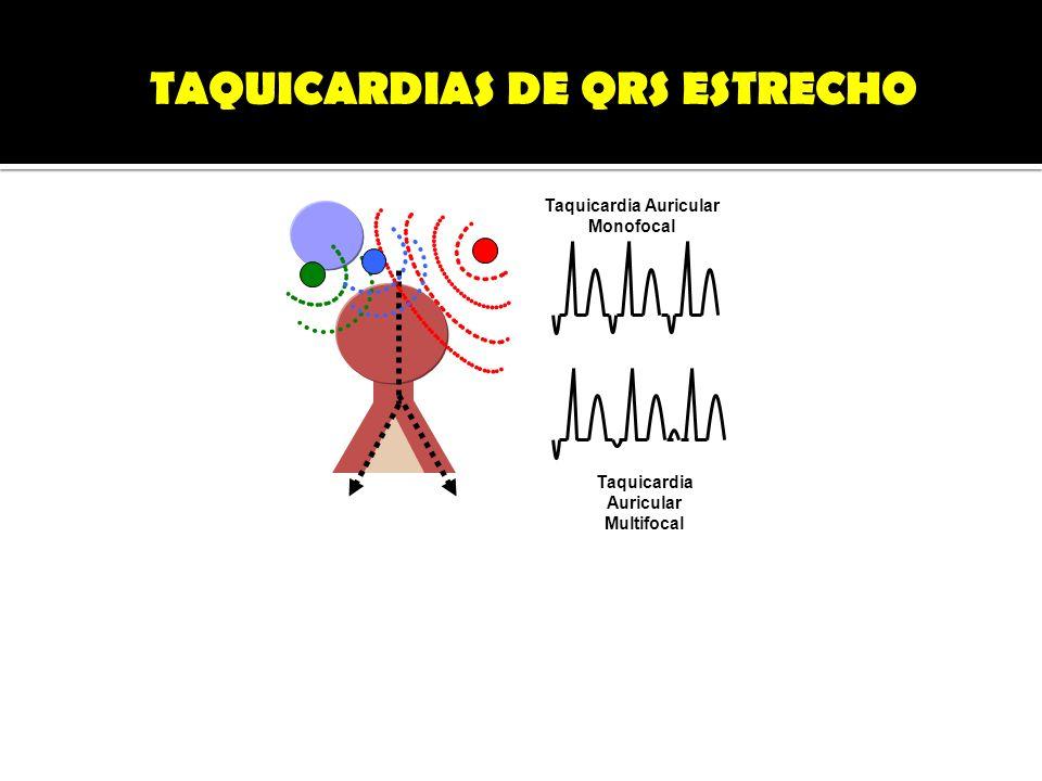 TAQUICARDIAS DE QRS ESTRECHO Taquicardia Auricular Monofocal Taquicardia Auricular Multifocal