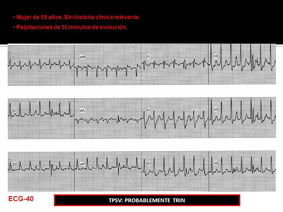 Mujer de 58 años. Sin historia clínica relevante. Palpitaciones de 30 minutos de evolución. ECG-40 TPSV: PROBABLEMENTE TRIN