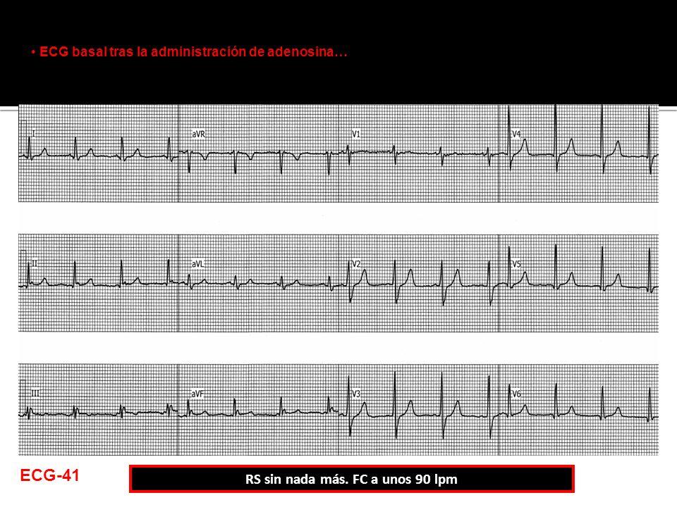 ECG basal tras la administración de adenosina… RS sin nada más. FC a unos 90 lpm ECG-41