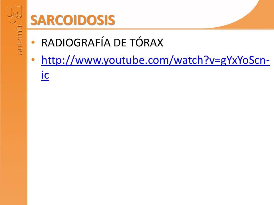 SARCOIDOSIS RADIOGRAFÍA DE TÓRAX http://www.youtube.com/watch?v=gYxYoScn- ic http://www.youtube.com/watch?v=gYxYoScn- ic