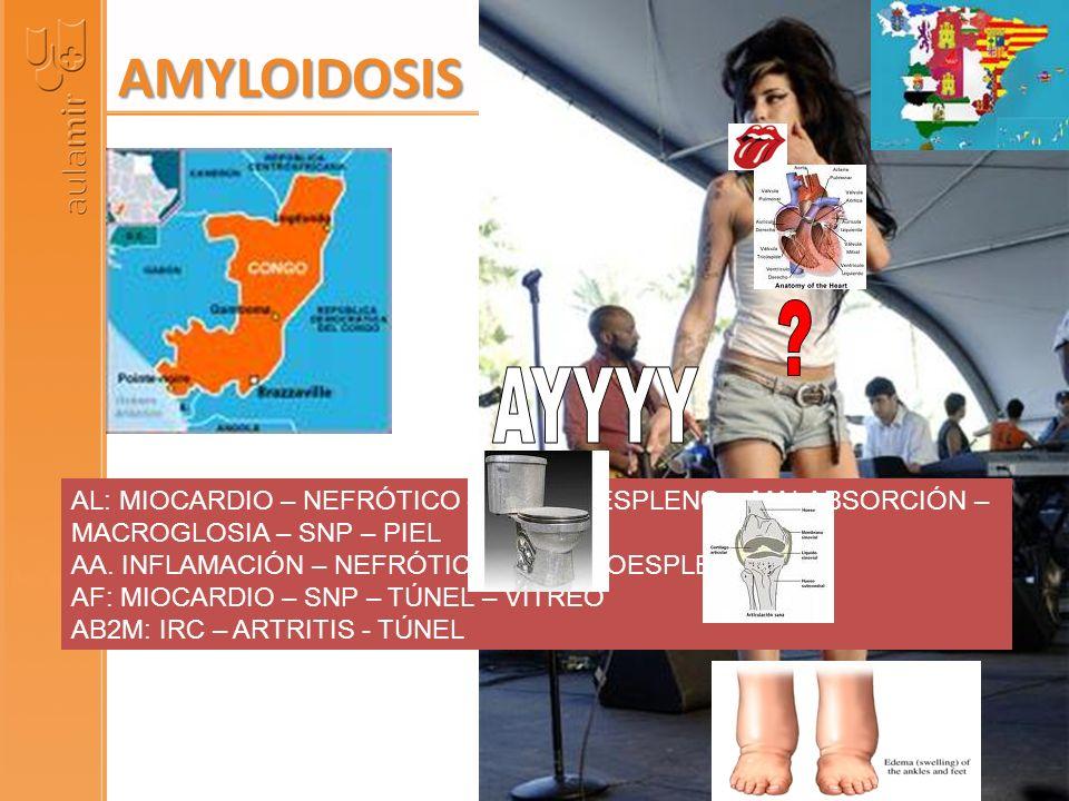 AL: MIOCARDIO – NEFRÓTICO – HEPATOESPLENO – MALABSORCIÓN – MACROGLOSIA – SNP – PIEL AA. INFLAMACIÓN – NEFRÓTICO – HEPATOESPLENO AF: MIOCARDIO – SNP –
