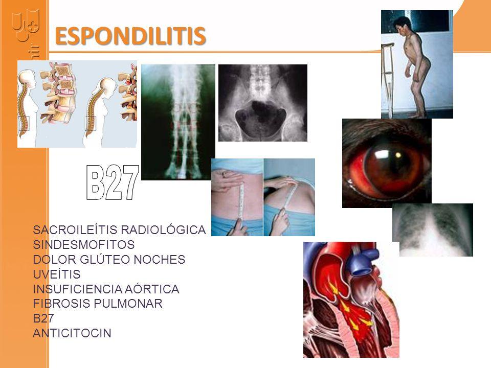 SACROILEÍTIS RADIOLÓGICA SINDESMOFITOS DOLOR GLÚTEO NOCHES UVEÍTIS INSUFICIENCIA AÓRTICA FIBROSIS PULMONAR B27 ANTICITOCINAS ESPONDILITIS