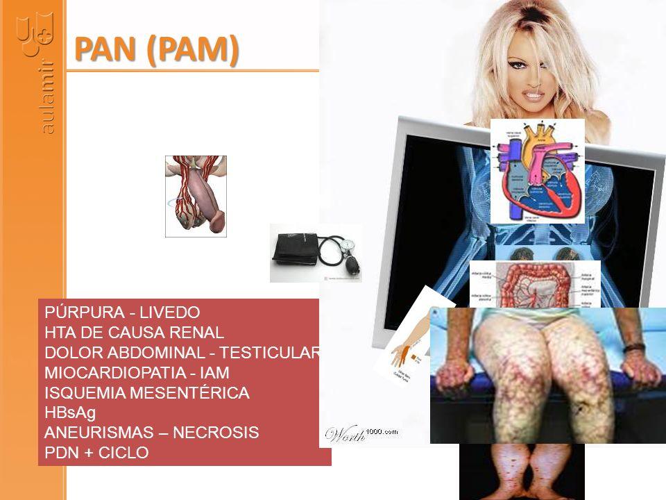 PÚRPURA - LIVEDO HTA DE CAUSA RENAL DOLOR ABDOMINAL - TESTICULAR MIOCARDIOPATIA - IAM ISQUEMIA MESENTÉRICA HBsAg ANEURISMAS – NECROSIS PDN + CICLO PAN