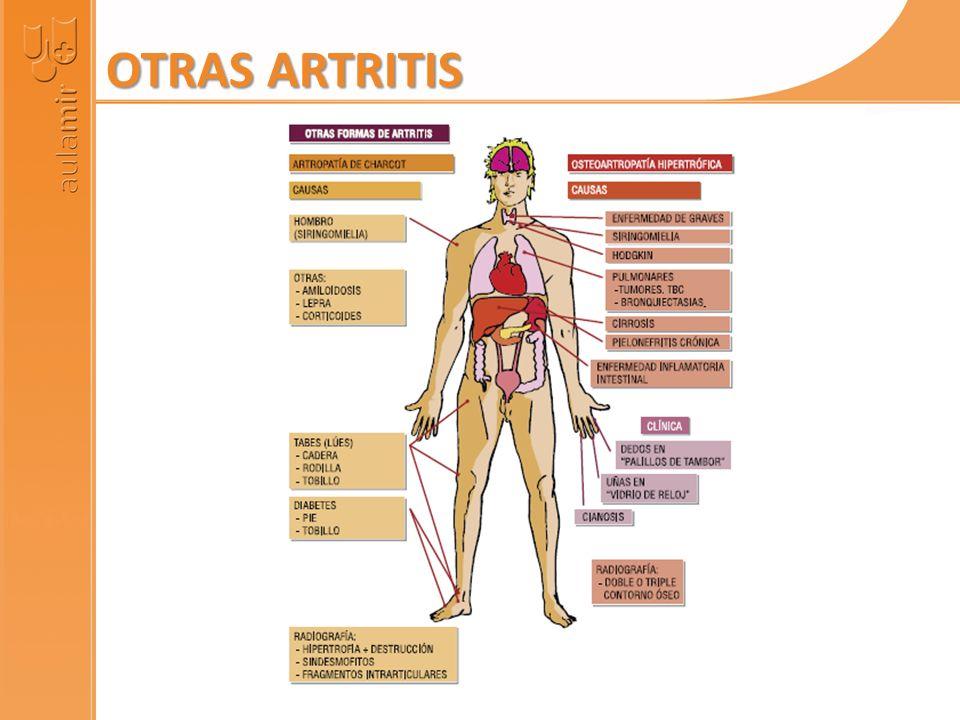 OTRAS ARTRITIS