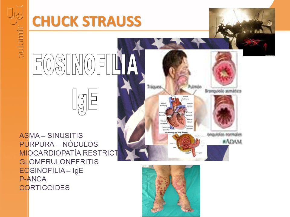 ASMA – SINUSITIS PÚRPURA – NÓDULOS MIOCARDIOPATÍA RESTRICTIVA GLOMERULONEFRITIS EOSINOFILIA – IgE P-ANCA CORTICOIDES CHUCK STRAUSS