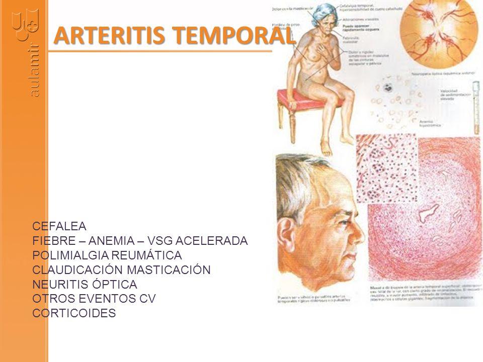 CEFALEA FIEBRE – ANEMIA – VSG ACELERADA POLIMIALGIA REUMÁTICA CLAUDICACIÓN MASTICACIÓN NEURITIS ÓPTICA OTROS EVENTOS CV CORTICOIDES ARTERITIS TEMPORAL