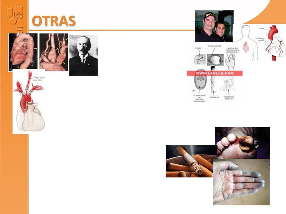 LOFGREN – HEERFORDT NEUMONÍA – ADENOPATÍAS HILIARES ADENOPATÍAS HIPERCALCEMIA LITIASIS RENAL HEPATOESPLENOMEGALIA MÉDULA ÓSEA ECA CORTICOIDES SARCOZYDOSIS