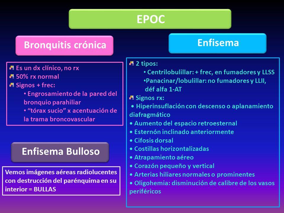 EPOC Bronquitis crónica Enfisema Es un dx clínico, no rx 50% rx normal Signos + frec: Engrosamiento de la pared del bronquio parahiliar tórax sucio x