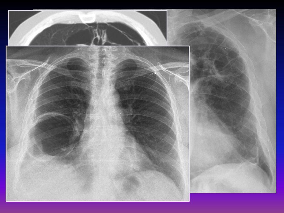 Hiperinsuflación con aplanamiento diafragmático Costillas horizontalizadas Corazón pequeño y vertical Arterias hiliares prominentes Oligohemia Aumento del espacio retroesternal