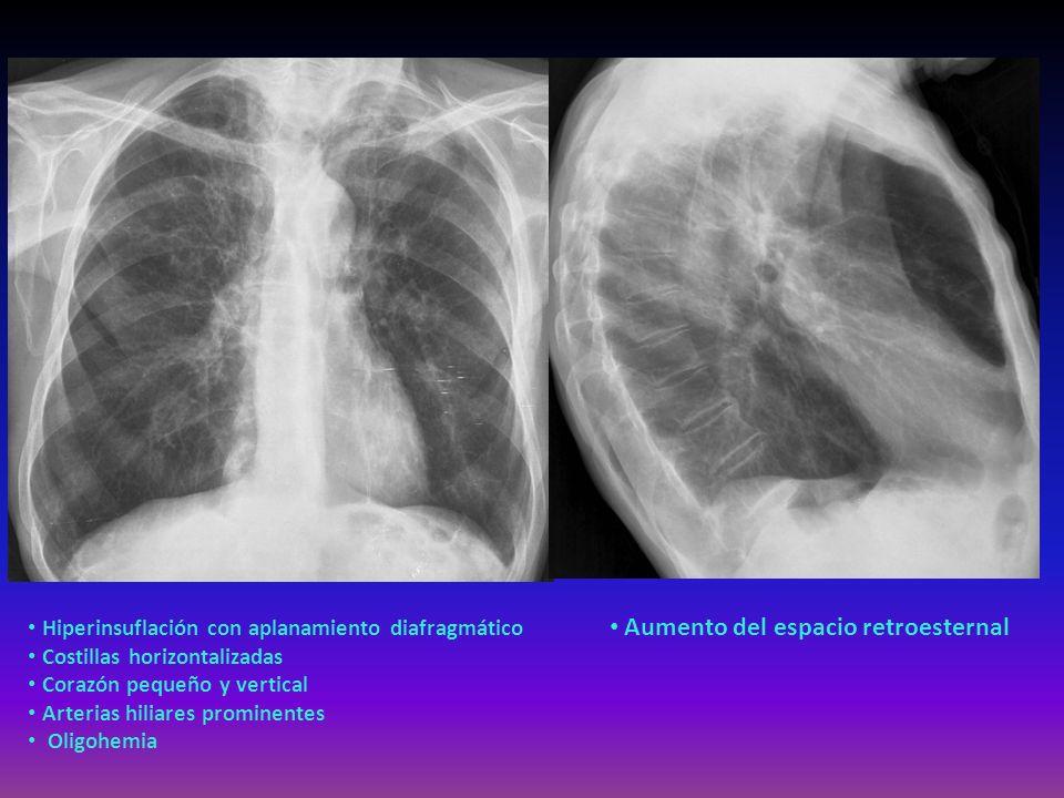Hiperinsuflación con aplanamiento diafragmático Costillas horizontalizadas Corazón pequeño y vertical Arterias hiliares prominentes Oligohemia Aumento